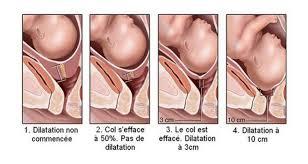dilatation col utérin